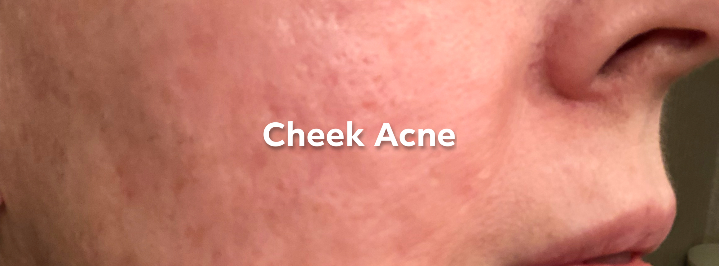 before - acne